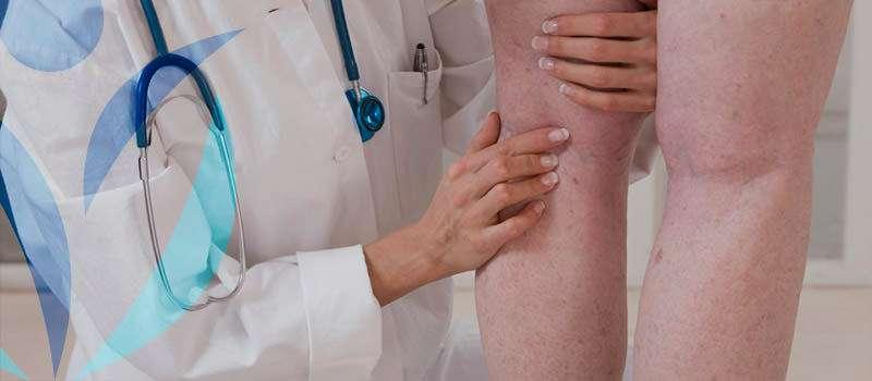 Espuma é uma alternativa para o tratamento de varizes